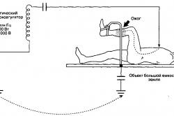Схема электроожога