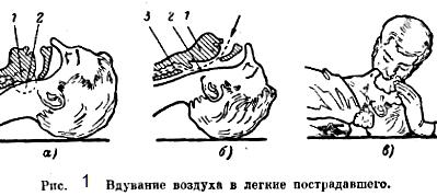 Схема вдувания воздуха в легкие пострадавшего