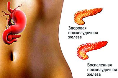 Здоровая и больная поджелудочная железа