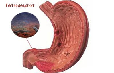 Проявление гастродуоденита
