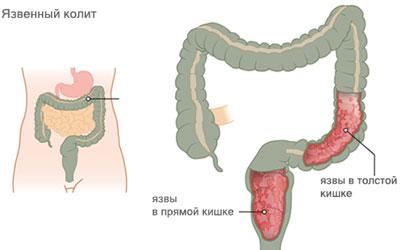 заболевание кишечника
