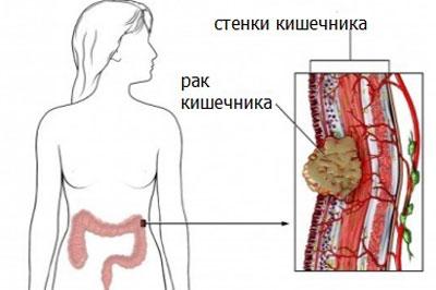 Признаки рака кишечника