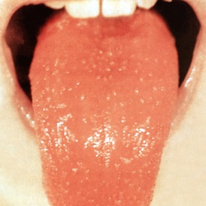 Изменение слизистой языка, образование прыщиков