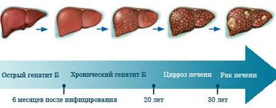 Развитие болезни печени
