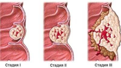 Стадии аденокарциномы