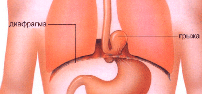 картинка грыжа желудка