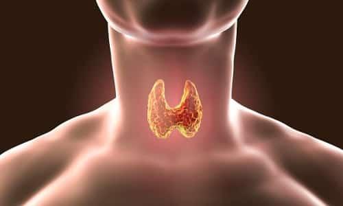 Фолликулярная аденома щитовидной железы представляет собой доброкачественную опухоль, которая встречается достаточно часто