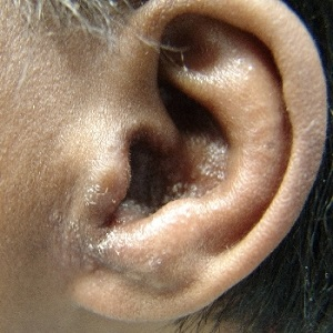 Аллергия в ухе