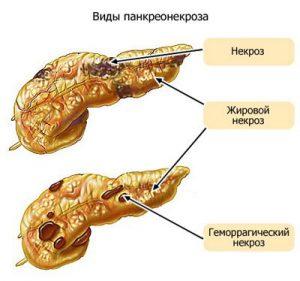 панкреонекроз
