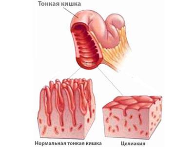 Болезнь тонкой кишки