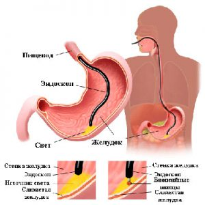 гастрофиброскопии с прицельной биопсией