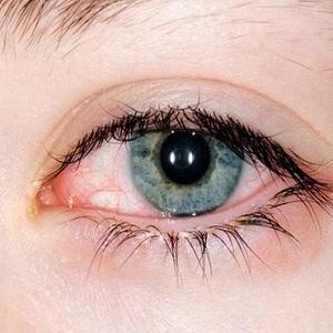 Проявление аллергии в виде конъюнктивита