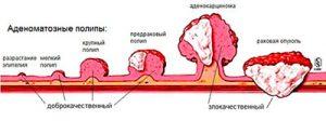 аденоматозные полипы