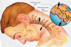 Остеохондроз шейного отдела позвоночника как причина болей под правой лопаткой