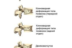 Классификация компрессионных переломов