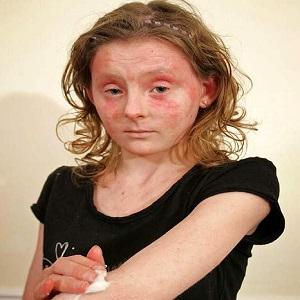 Череда от дерматита аллергического