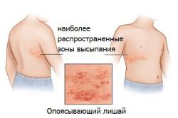 Опоясывающий лишай - последствие остеохондроза грудного отдела