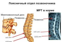 Поясничный отдел позвоночника на МРТ