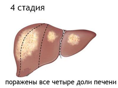 Четвертая стадия рака печи