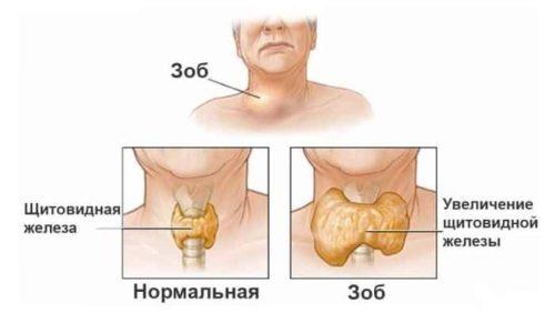 Узловой зоб щитовидной железы - это общее название для уплотнений в этом органе, отделенных капсулой от его здоровой, неизмененной ткани