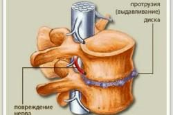 Шейно грудной остеохондроз