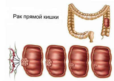 Рак прямой кишки