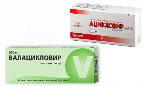Ацикловир при попадании в организм проходит лишь стадию фосфорилирования, не метаболизируется, как Валацикловир, его применять предпочтительнее