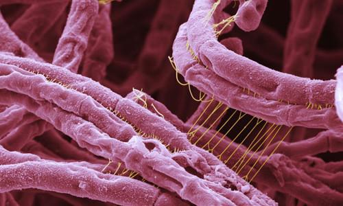 Вирусы сибирской язвы