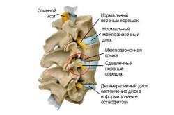 Защемление нерва в позвоночнике-причина болей в пояснице
