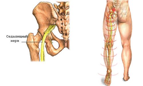 Санатории с лечением артроза и артрита