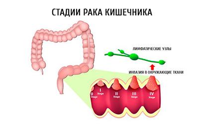 стадии рака кишечника, рисунок