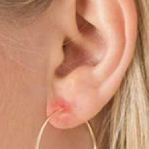 Аллергия на серьги содержащие никель