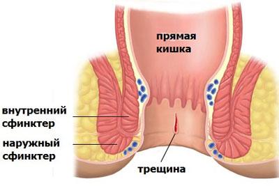 Внутренний и наружный сфинктеры