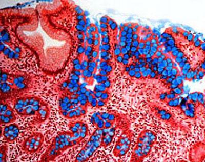 Аутоиммунный гастрит