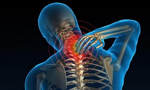 Боль в шее при цервикалгии