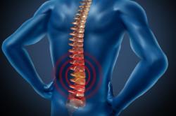 Сколиоз - причина болей в спине