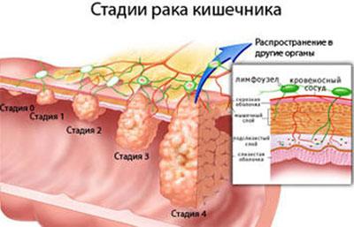 Стадии рака кишечн