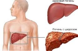 Цирроз - причина болей под ребрами