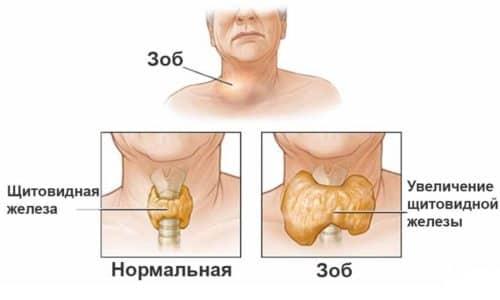 В любой форме зоб щитовидной железы опасен для здоровья
