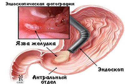 Выявление патологии при гастроскопии