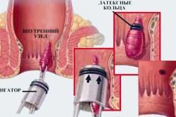 Схема лазерного лечения геморроя
