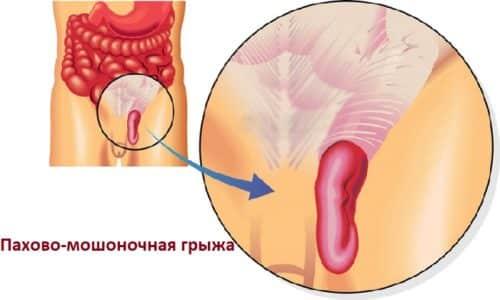 Пахово-мошоночная грыжа - патология хирургического характера, проявляющаяся выпадением органов, локализованных в брюшной полости в области мошонки
