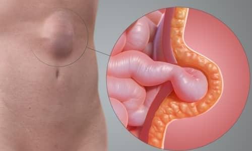 Грыжа живота - хирургическое заболевание, при котором происходит выпадение органов брюшной полости через отверстия, образующиеся в мышцах