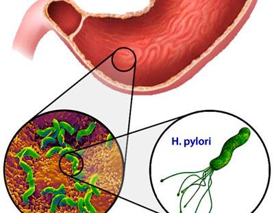 Бактерия Хилобактер Пилори