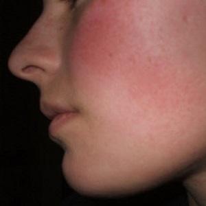 Покраснение кожи на лице