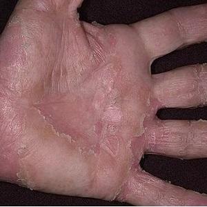 Вид экземы на руке