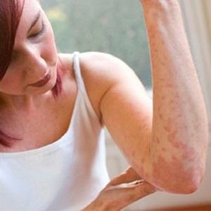 Аллергическая крапивница на руке