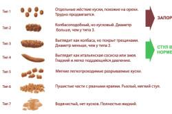 Классификация видов кала