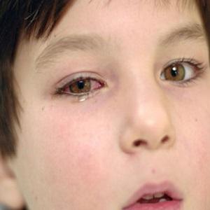 Аллергический конъюнктивит на одном глазу