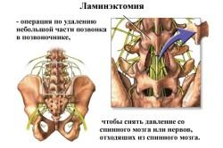 Принцип ламинэктомии